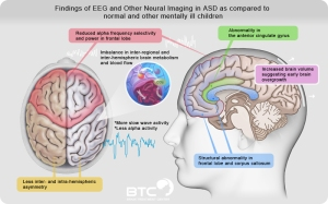 Synopsis of brain activity in patient with Autism